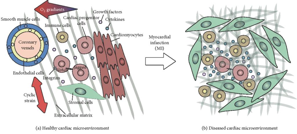 Schematisk presentation av mikromiljön i hjärtvävnaden i ett friskt hjärta och ett skadat hjärta. Illustration.