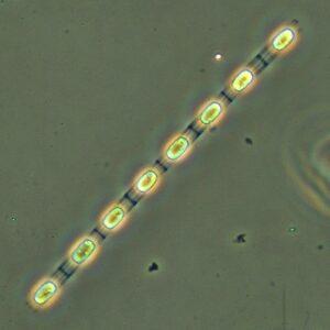 Mikroskopbild på en kiselalg